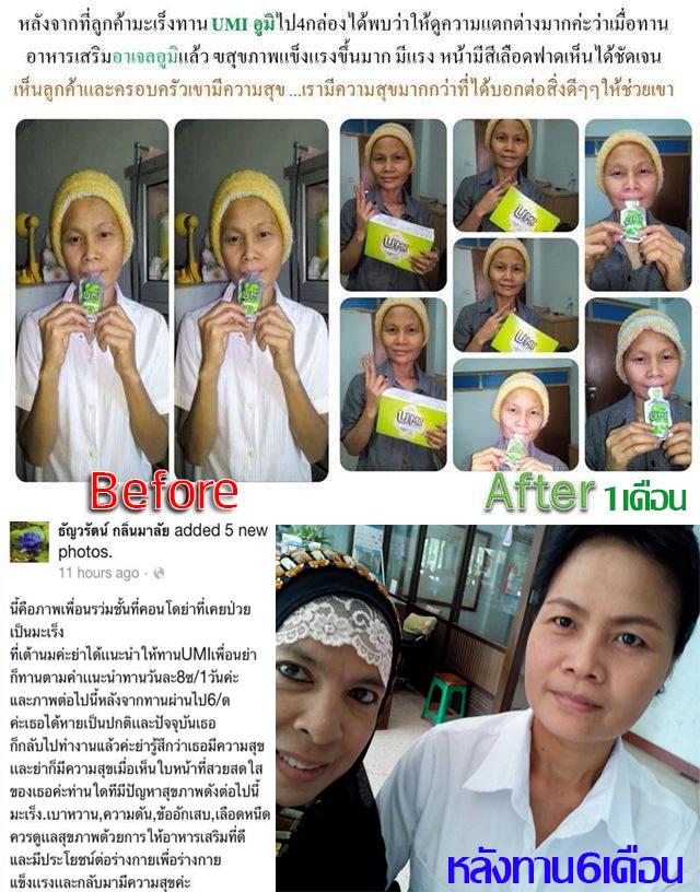 Share UMI Cancer 03